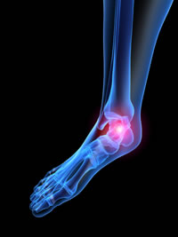 Plantar Fasciitis Foot Treatments