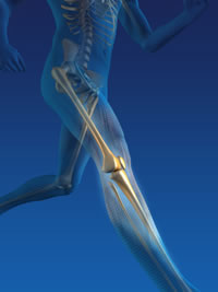 Lower Extremity Pain Symptoms