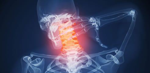 Cervicothoracic Interspinous Bursitis Neck Pain